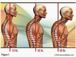 muscles, chronic pain, posture, alignment