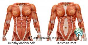 Diastasis Graphic