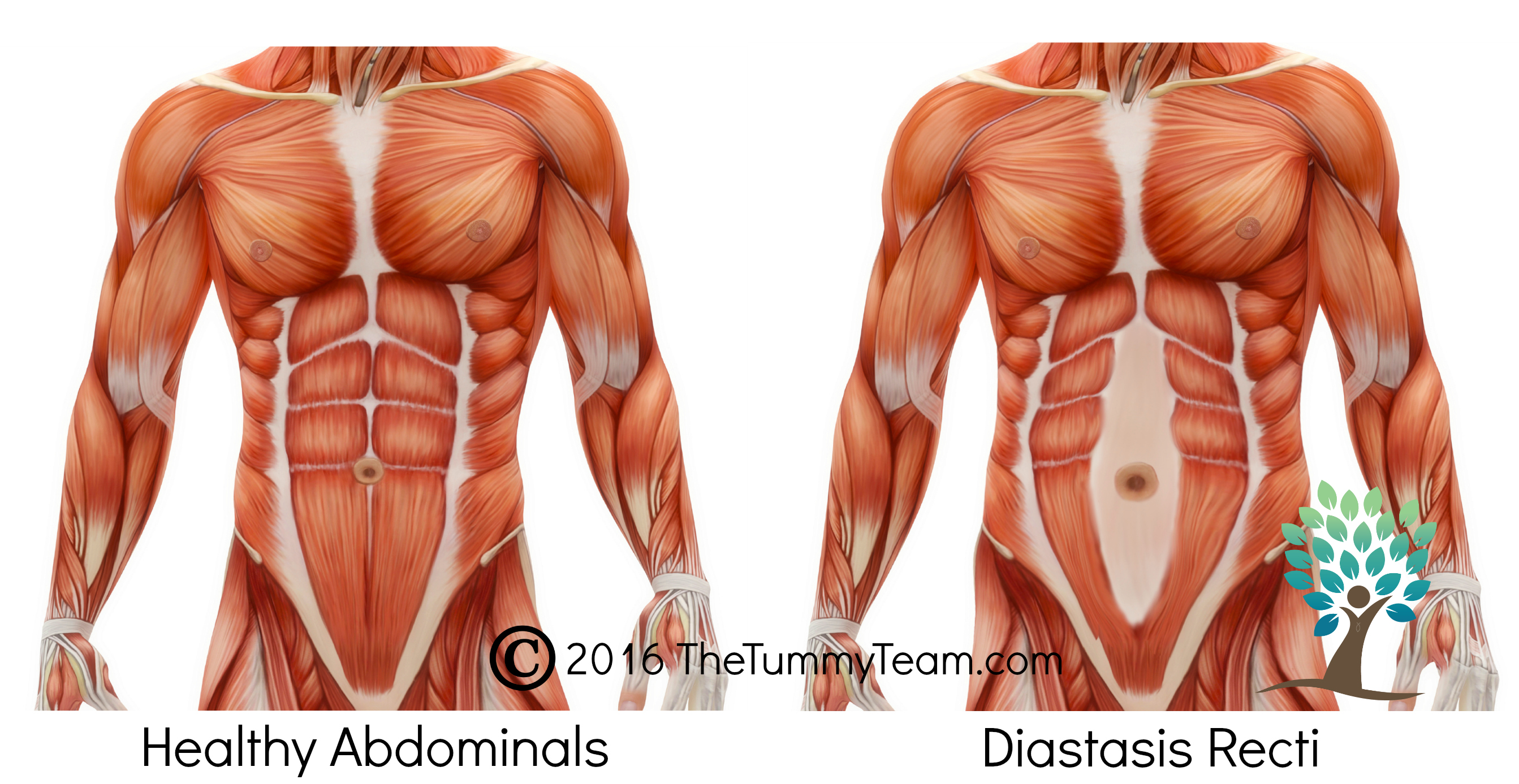 3 Common Symptoms You Did Not Know Were Related To Diastasis Recti