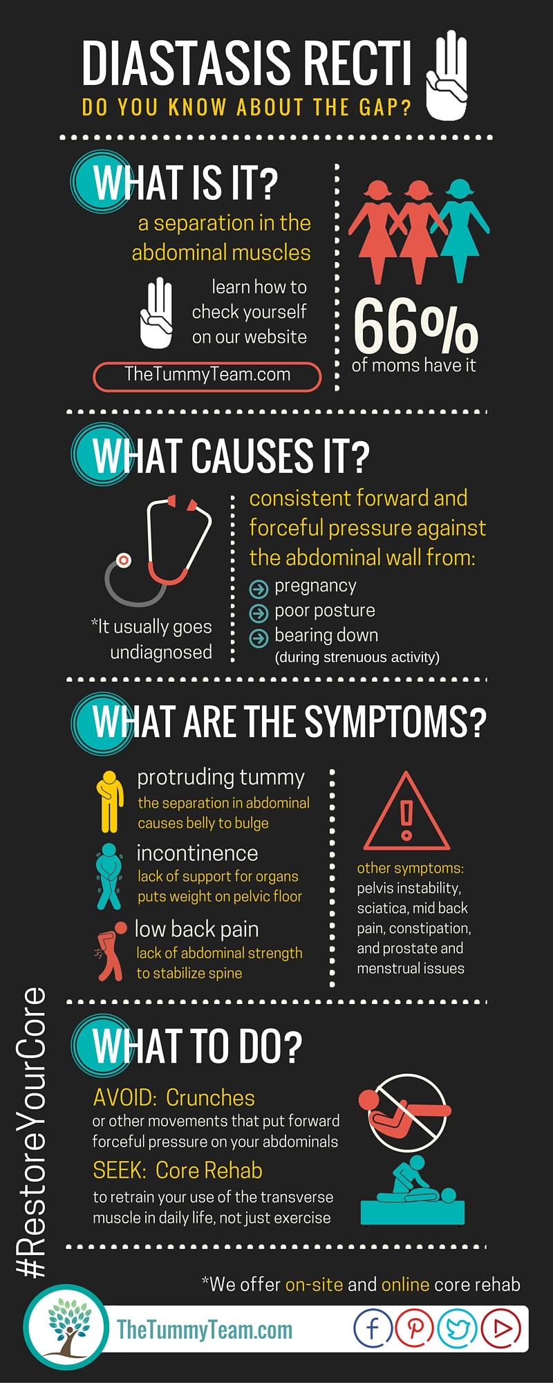 Diastasis Recti Infographic