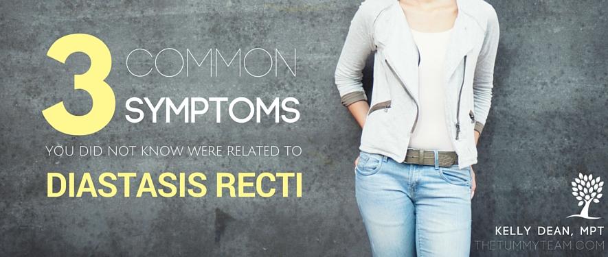 Diastasis recti symptoms