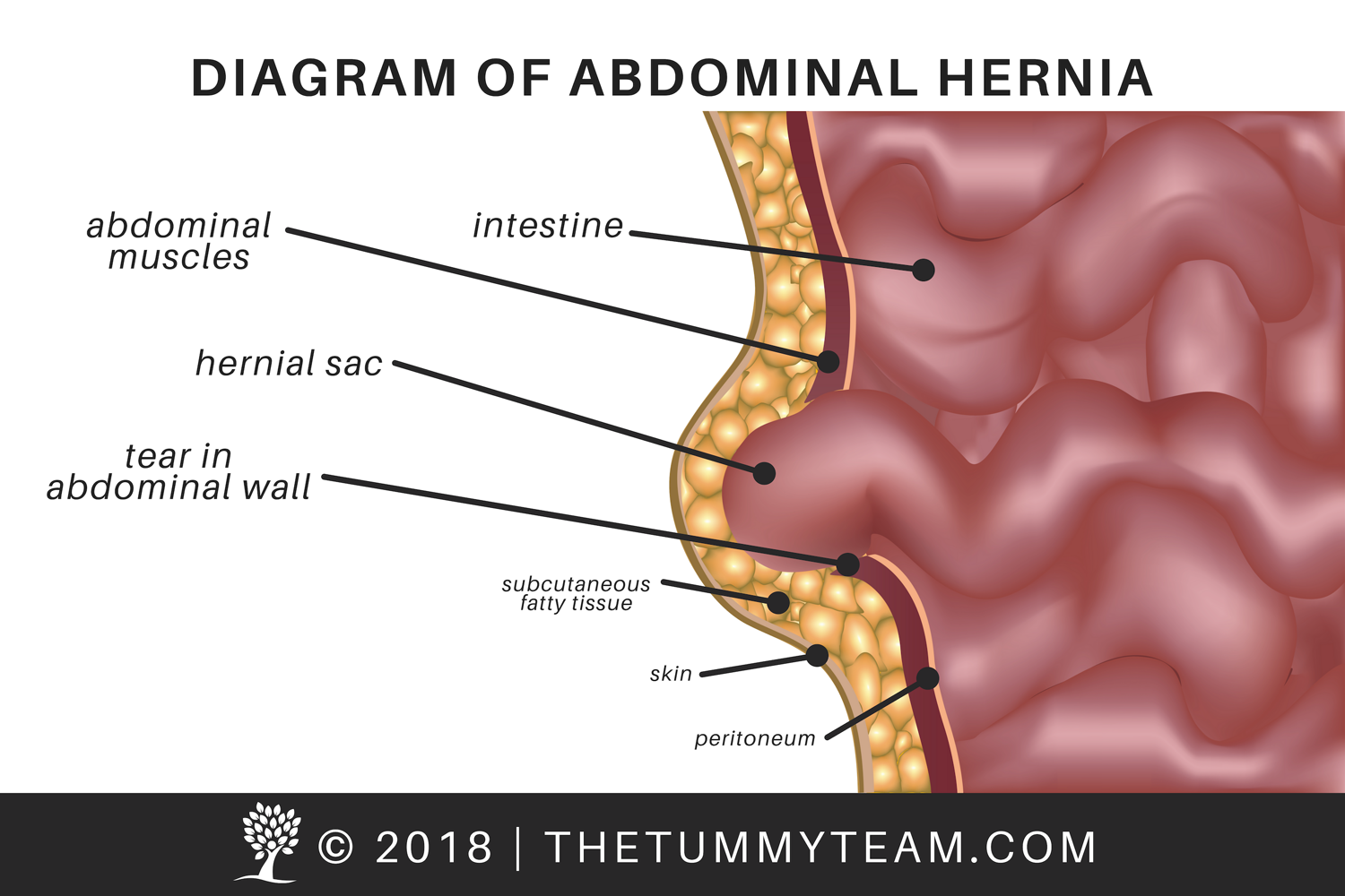 hernia diagram, copyright, the tummy team