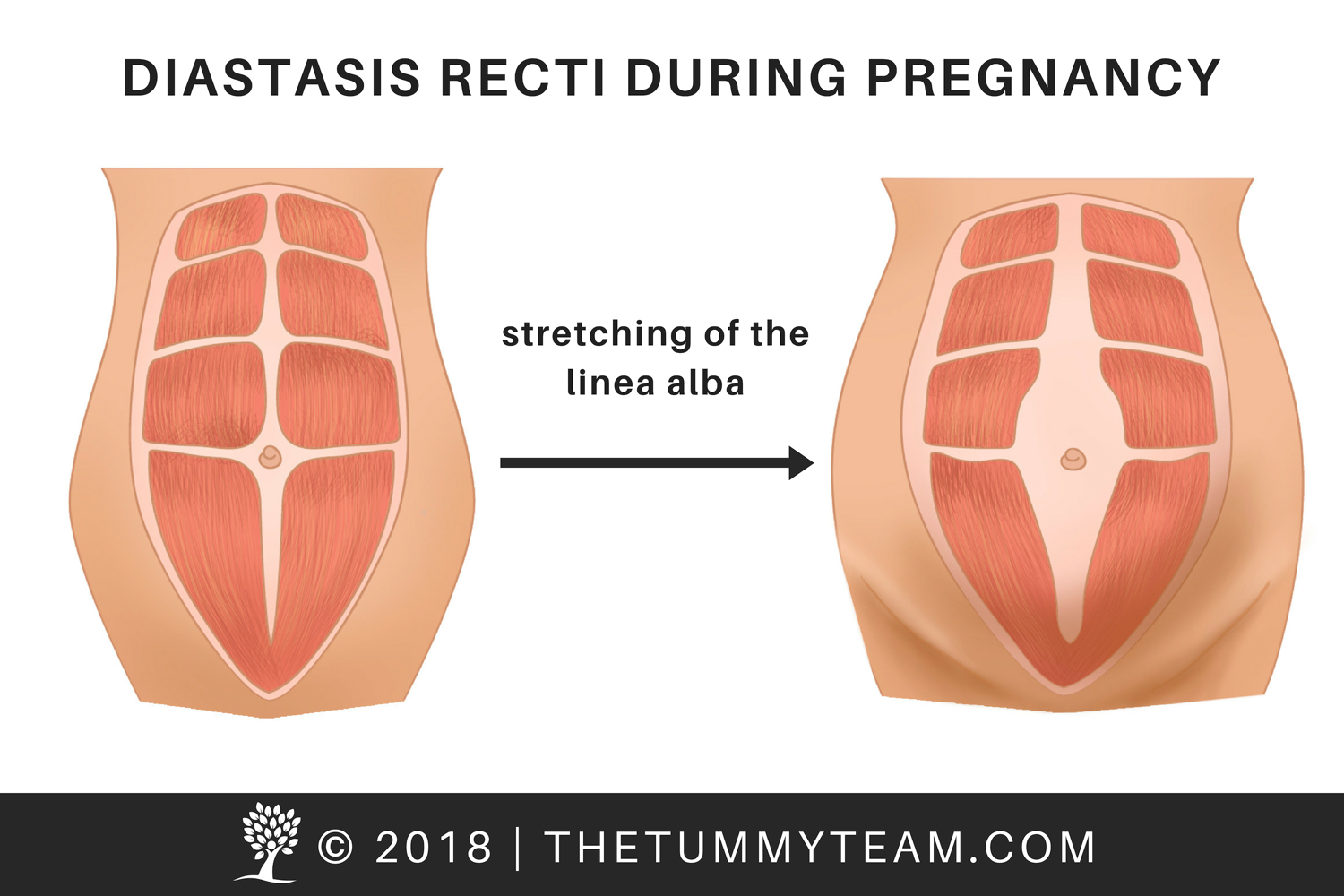 Diastasis Recti in Pregnancy, Copyright, The Tummy Team