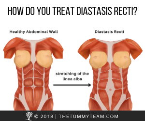 Learn more about diastasis recti and how you can treat it